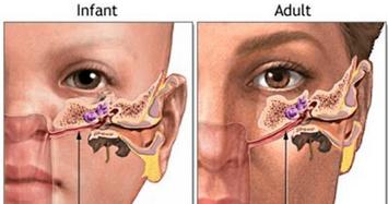 Cảnh báo hệ lụy của việc véo sống mũi làm đẹp thô bạo