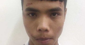 Cô gái giật chỏ khiến tên cướp bất tỉnh rồi nhờ người đưa đi viện