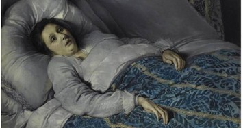 Biết gì về bệnh lạ khiến con người giống như xác sống?