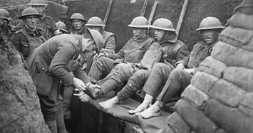 Binh sĩ tại chiến hào trong chiến tranh thế giới lần 1 ăn ngủ thế nào?