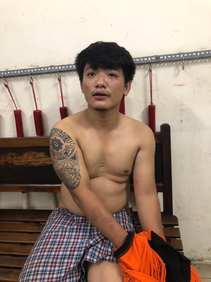 Trung uy Cong an bi gay tay khi khong che ke ngao da
