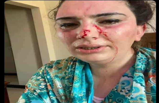 Chan dung con gai Dai su Afghanistan bi bat coc o Pakistan-Hinh-3